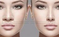 آیا جراحی بینی همزمان با ارتودنسی قابل انجام است؟