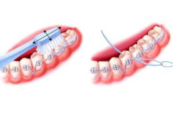 نخ دندان در حین ارتودنسی
