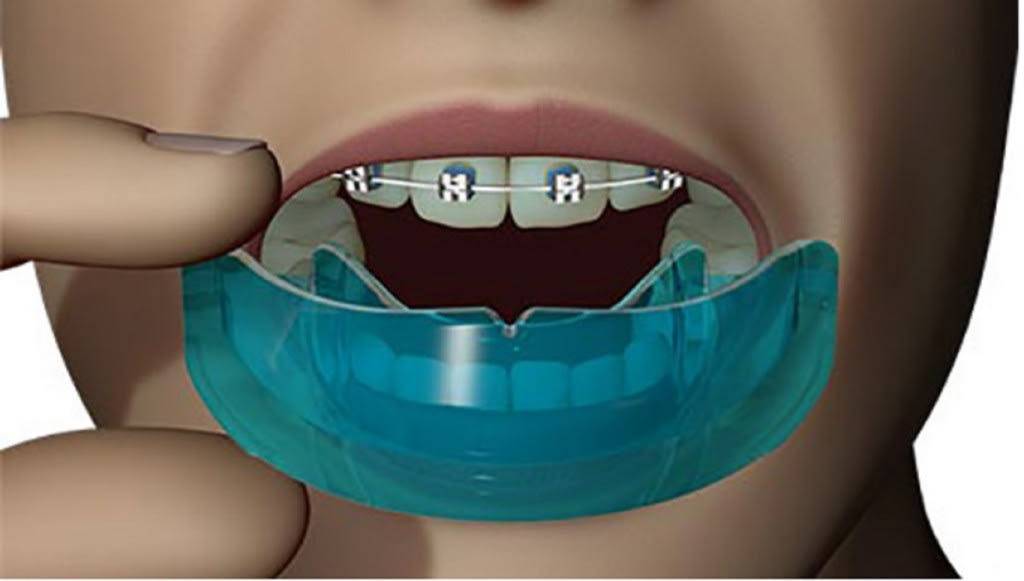 محافظت کننده های ارتودنسی و دندان