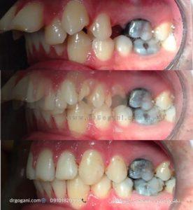 ارتودنسی بدون جراحی فک و صورت (استتار)