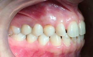دندان نیش شیری به جای دندان نیش نهفته دائمی