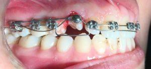 رویاندن دندان نیش نهفته با ارتودنسی