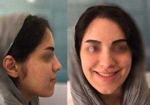 ارتودنسی فوق تخصصی - صورت در زمان پایان