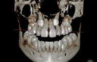 مراحل درمان دندان نیش نهفته با ارتودنسی