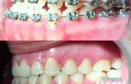 مراحل یک ارتودنسی فوق تخصصی برای نجات از جراحی فک
