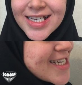 ارتودنسی بدون جراحی فک - لبخند (قبل)