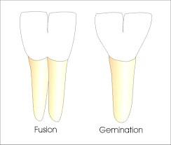 دندتن بزرگ به علت فیوژن (جوش خوردگی) یا جوانه زدن