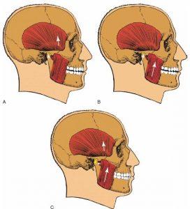 عضلات موثر بر مفصل گیجگاهی فکی