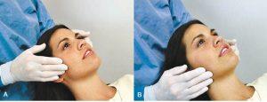 لمس عضله مستر در معاینه غربالگری درد مفصل فک