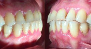 رابطه نوک به نوک دندان های قدامی