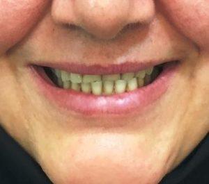 ارتودنسی فک پایین با کشیدن دندان در 53 سالگی