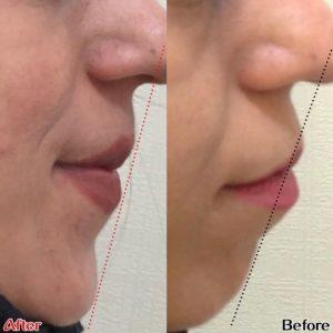 قبل و بعد ارتودنسی برای لب برجسته