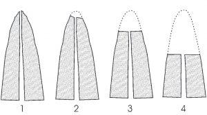تحلیل ریشه دندان در ارتودنسی