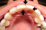 کامپوزیت دندان نامناسب - پشیمانی و اقدام به ارتودنسی