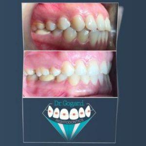 درمان برجستگی لب ها و دندان ها با ارتودنسی وکشیدن دندان