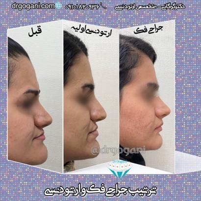 ترتیب رایج ارتودنسی و جراحی فک