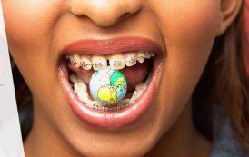 تغذیه در ارتودنسی : باید ها و نباید ها