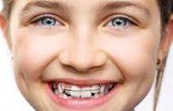 آیا ارتودنسی برای پیشگیری از بیماری های دهان توصیه می شود؟