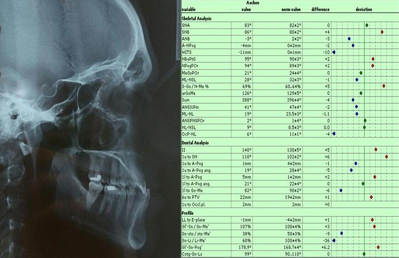 یافته های سفالومتری قبل از جراحی زیبایی